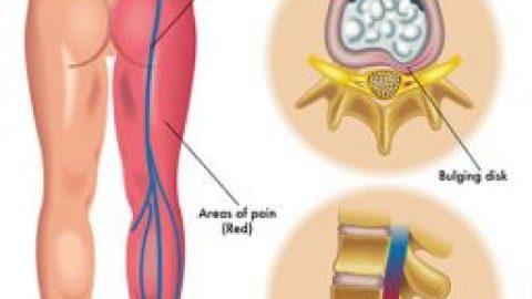 Our Orlando Pain Clinic Treats Sciatica