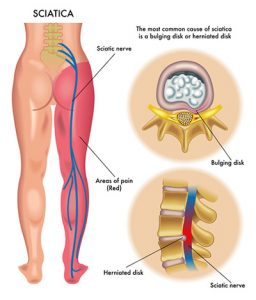 orlando pain clinic treats sciatica