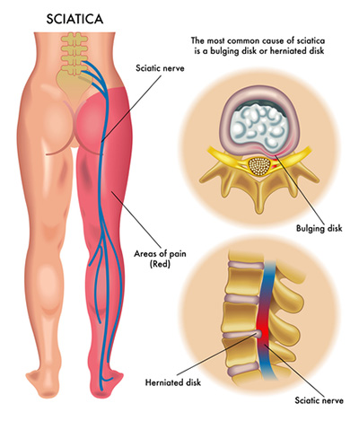 orlando pain clinic treats sciatica