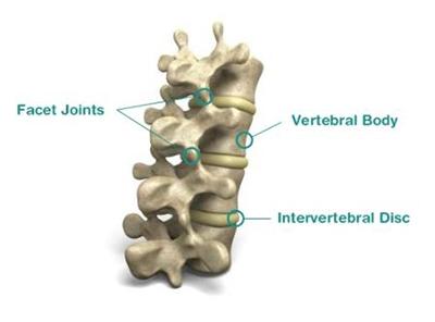 lumbar facet mediated pain treatment