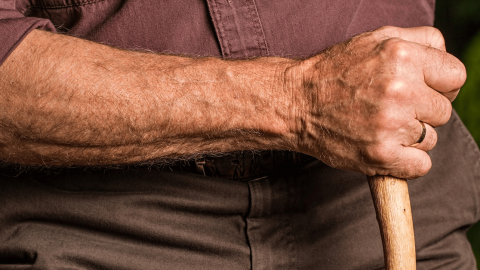 All About Radiculopathy (Arm Pain) & Treatment