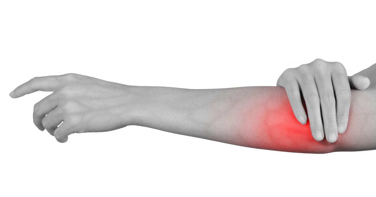 Doctors Who Treat Arthritis in Orlando