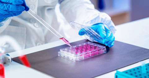 Could Stem Cell Therapy Be Useful For COVID Trials? Find Out Here
