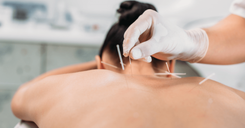 Acupuncture Confirmed to Alleviate Pain, According to Research