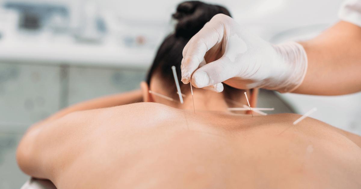 acupuncture in Orlando